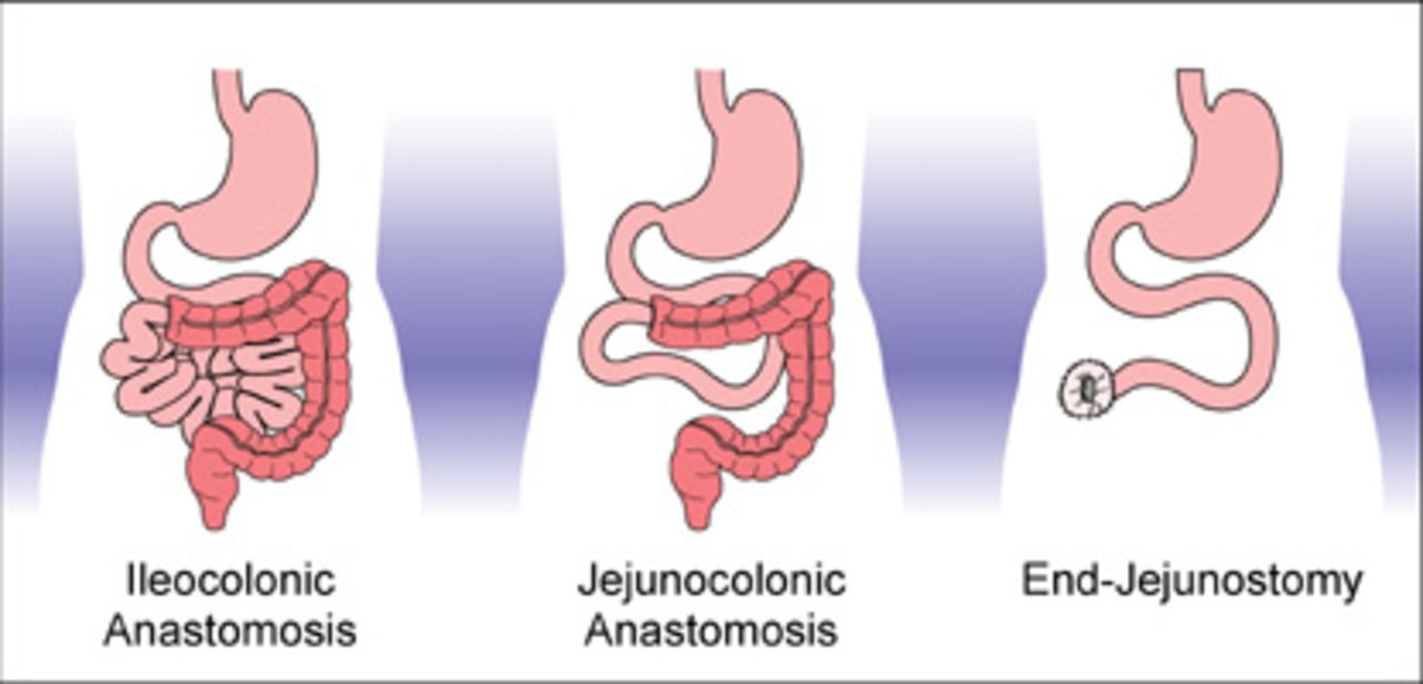 Intestinal Adaptation in Short Bowel Syndrome | Journal of ...